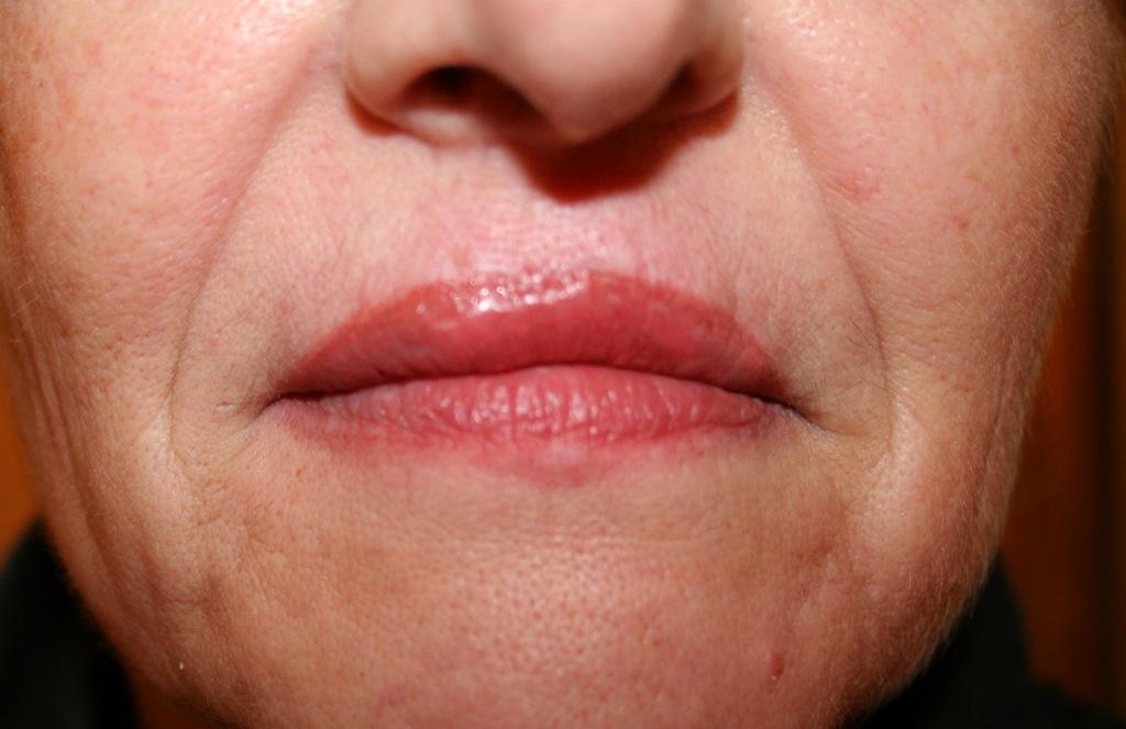 Le psoriasis et les taches de pigment sur la personne